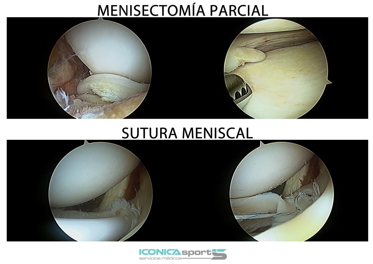 artroscopia-menisectomia-parcial-sutura-de-menisco