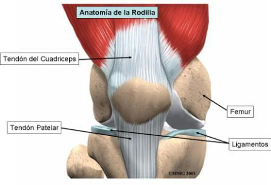 La Tendinosis Rotuliana y su tratamiento | ICONICA SPORTS