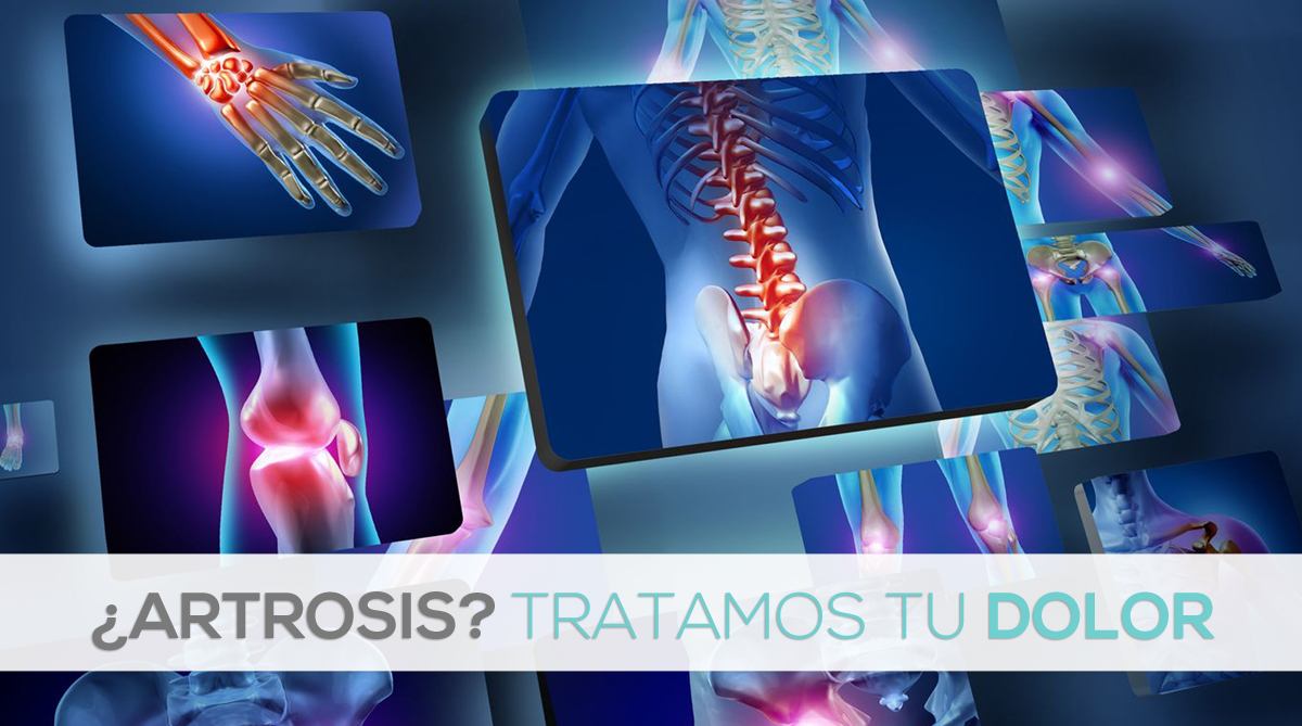 fisioterapia-traumatologo-vigo-tratamiento-artrosis