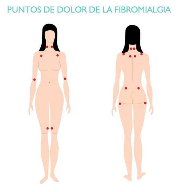 puntos-de-dolor-de-la-fibromialgia-iconica-vigo