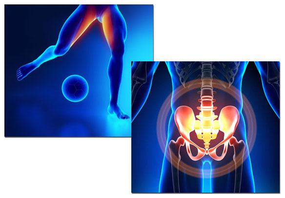 Pubalgia Causas Síntomas Tratamiento Y Ejercicios Iconica Servicios Médicos