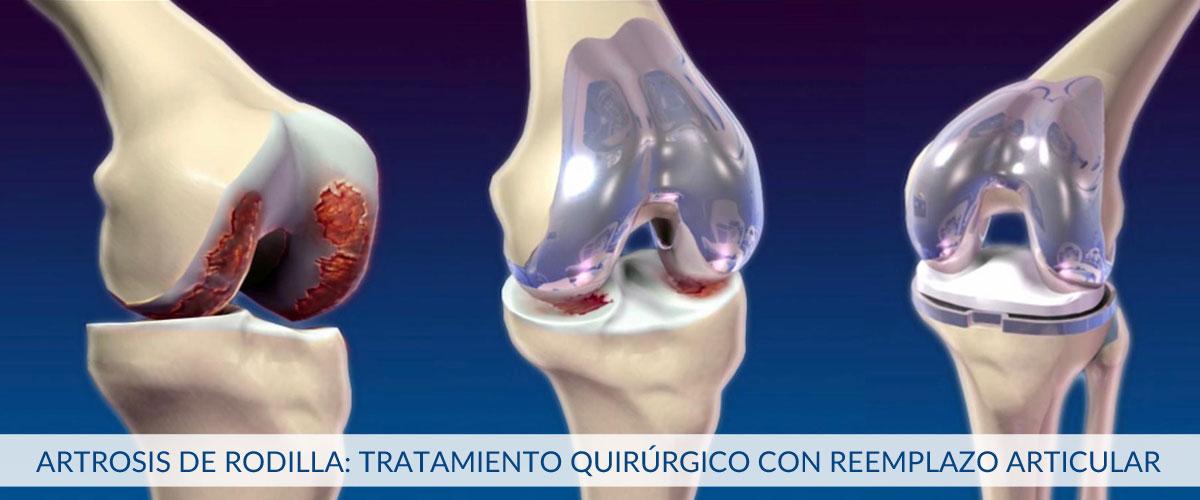 artrosis-de-rodilla-protesis-de-rodilla