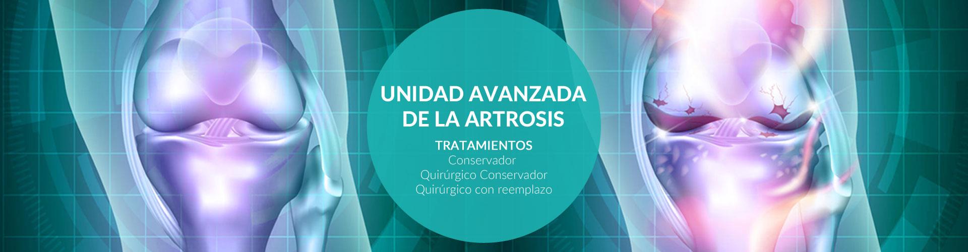 tratamientos-avanzados-de-la-artrosis