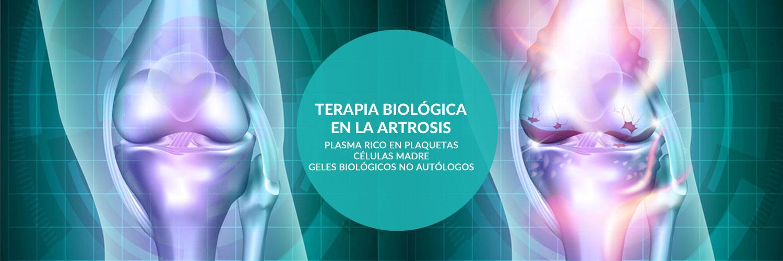 tratamiento-artrosis-celulas-madre-y-plaquetas-enriquecidad