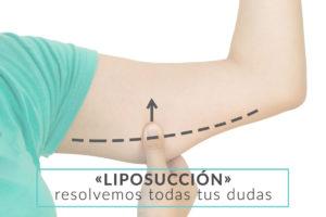 cirujano-plastico-liposuccion-vigo