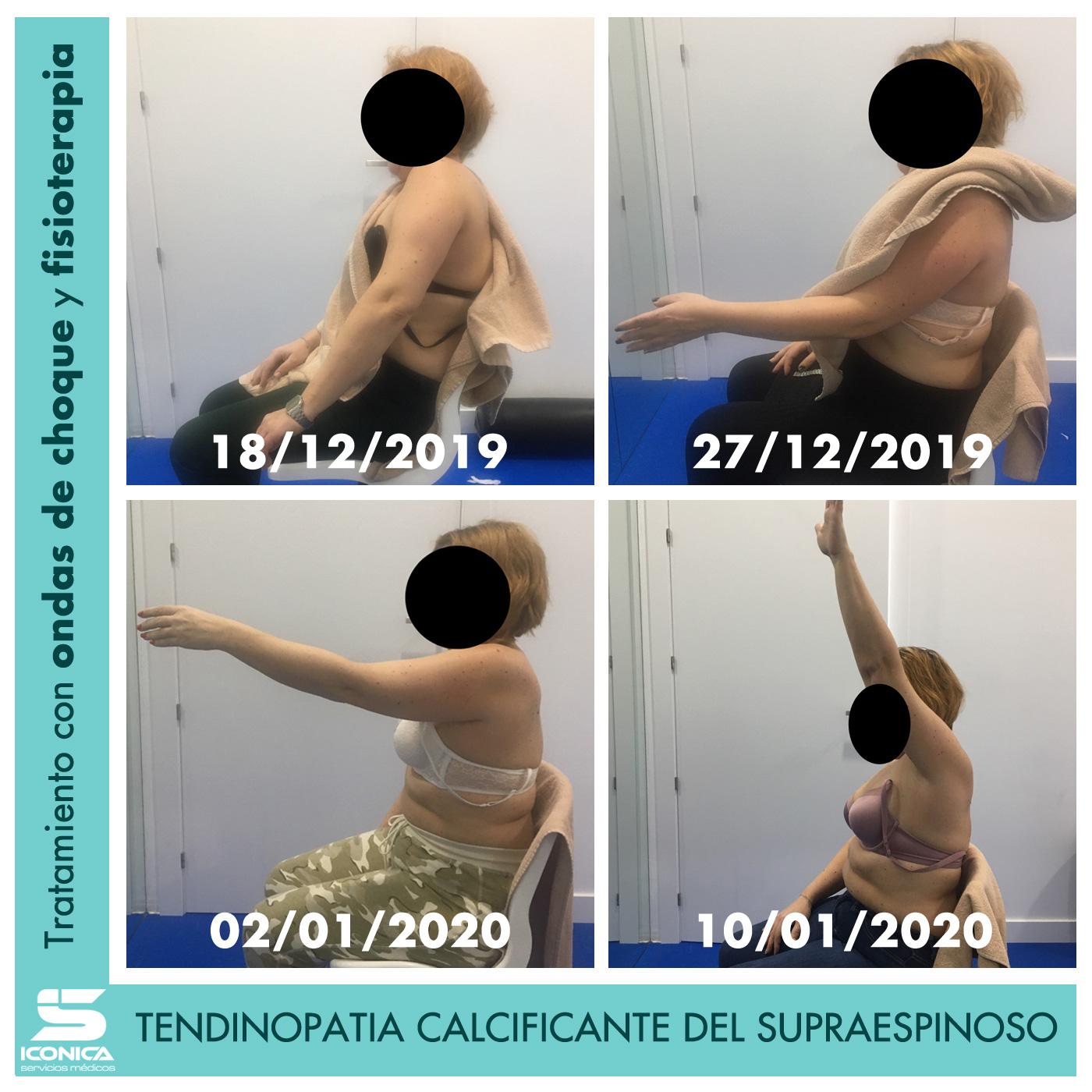 Tratamiento-de-una-tendinopatía-calcificante-del-supraespinoso