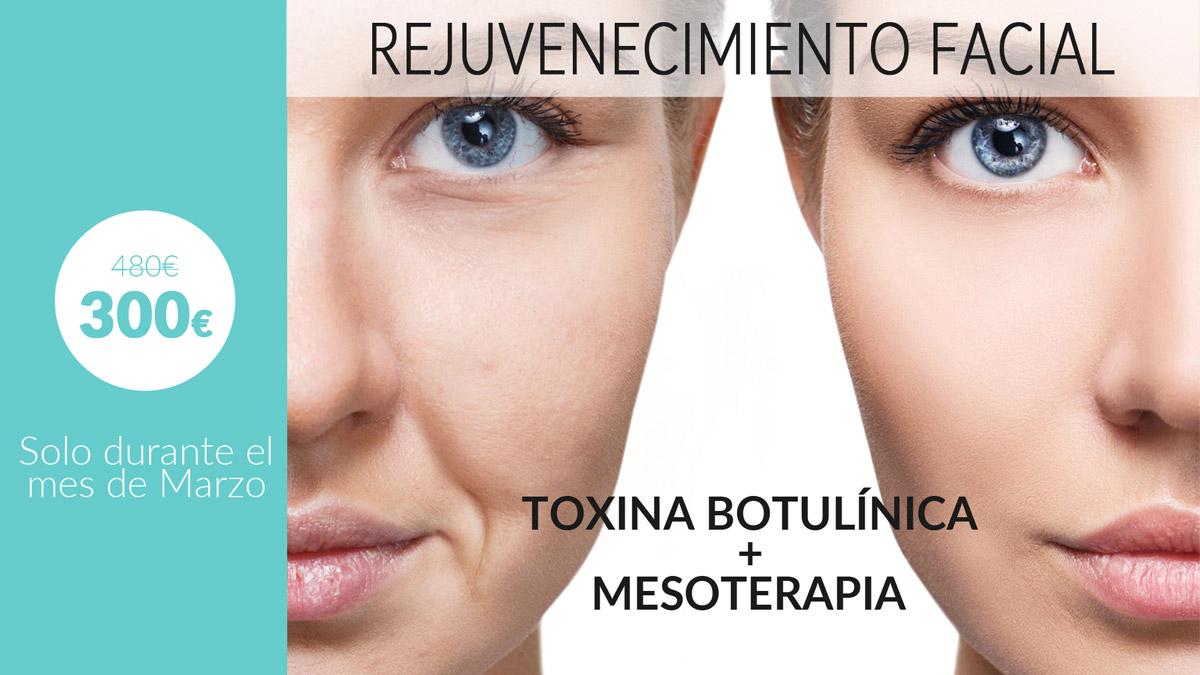 oferta-tratamiento-botox-mesoterapia-vigo