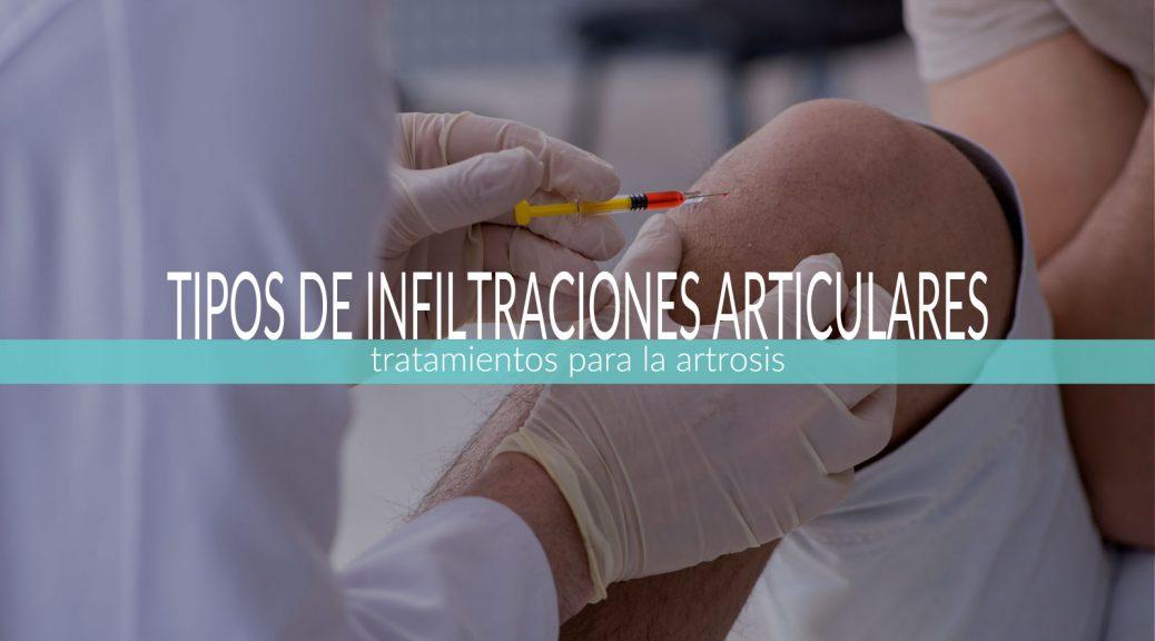 infiltracion-de-rodilla-para-la-artrosis