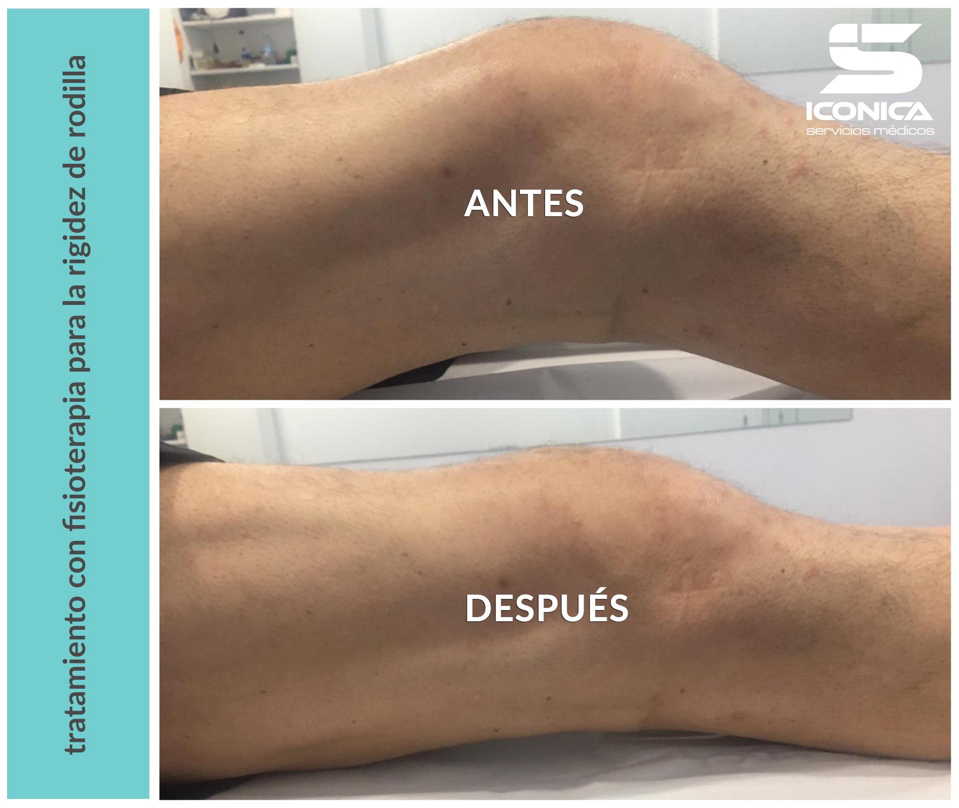 tratamiento-de-la-rigidez-de-rodilla-con-fisioterapia