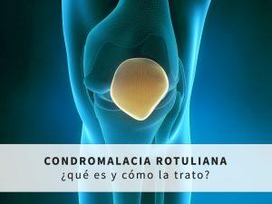 Condromalacia rotuliana: que es y como se trata